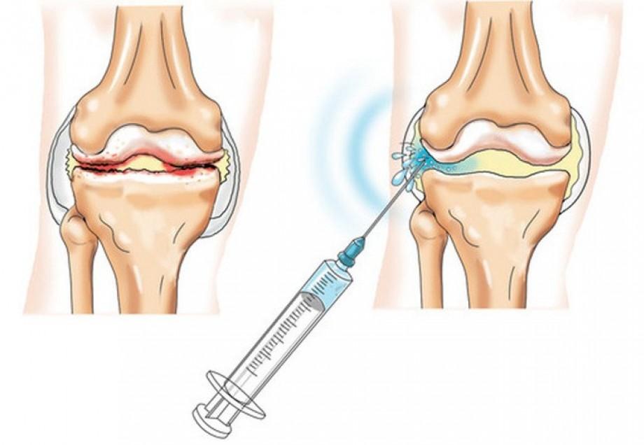 PRP-терапия. Инъекци для лечения суставов во Владивостоке